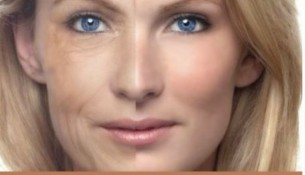 Home Remedies For Wrinkles - Do Herbal Remedies For Wrinkles Work Myth Exposed