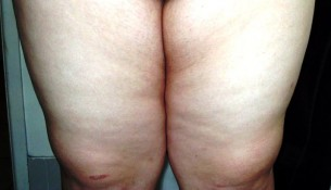 How you can Get Rid Of Inner Thigh Fat