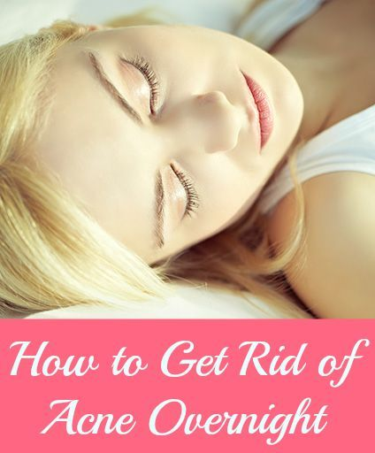 How To Get Rid Of Painful Acne Overnight
