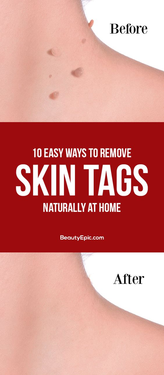 10 Easy Ways to Remove Skin Tags Naturally at Home 10 Easy Ways to Remove Skin Tags Naturally at Home
