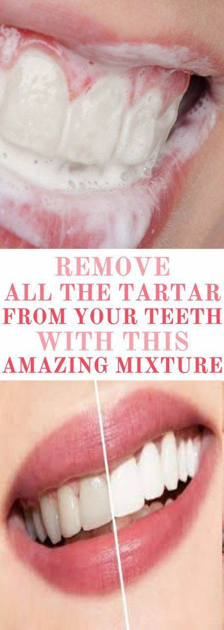 14 Try This Amazing Mixture And Remove All the Tartar From Your Teeth