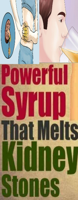 POWERFULL SYRUP THAT MELT KIDNEY STONS POWERFULL SYRUP THAT MELT KIDNEY STONS