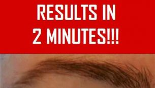 Natural Remedy For Sagging Eyelids You Will See Results In 2 Minutes!