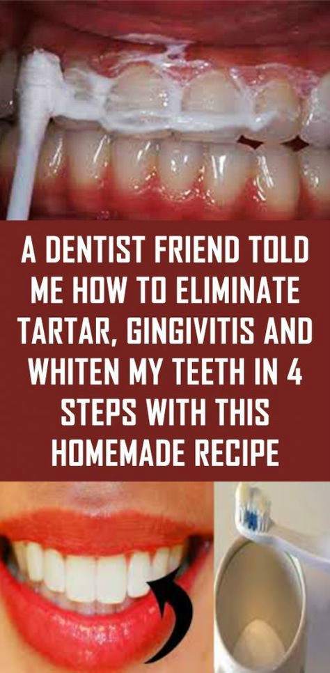 12 3 A Dentist Friend Told Me How To Eliminate Tartar, Gingivitis And Whiten My Teeth In 4 Steps With This Homemade Recipe