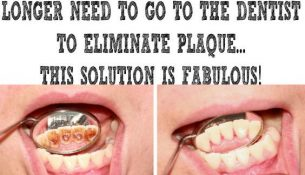 UNBELIEVABLE! YOU WILL NO LONGER NEED TO GO TO THE DENTIST TO ELIMINATE PLAQUE… THIS SOLUTION IS FABULOUS!