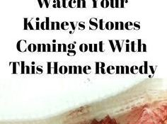 Kidneys are a one of the most important vital part of our body