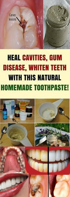 17 1 HEAL CAVITIES, GUM DISEASE, AND WHITEN TEETH WITH THIS NATURAL HOMEMADE TOOTHPASTE!