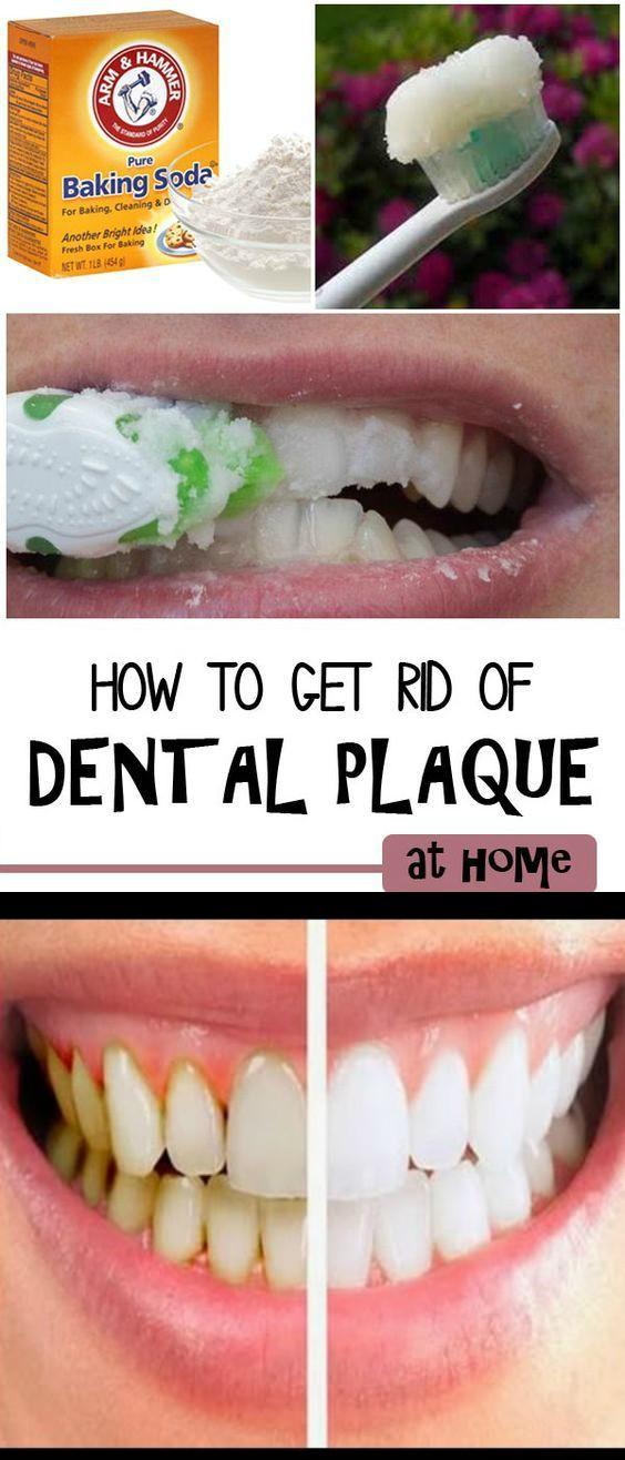 19 1 How to Remove Dental Plaque
