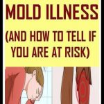 Here Are 17 Signs Of Mold Illness & How To Tell If You're At Risk