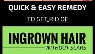 Quick & Easy Remedy To get Rid Of Ingrown Hair Without Scars!!!