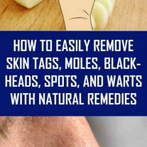 How to Easily Remove Skin Tags, Moles, Blackheads, Spots, and Warts with Natural Remedies