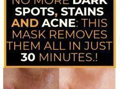 NO MORE DARK SPOTS, STAINS AND ACNE THIS CHINESE MASK REMOVES THEM ALL IN JUST 30 MINUTES.!
