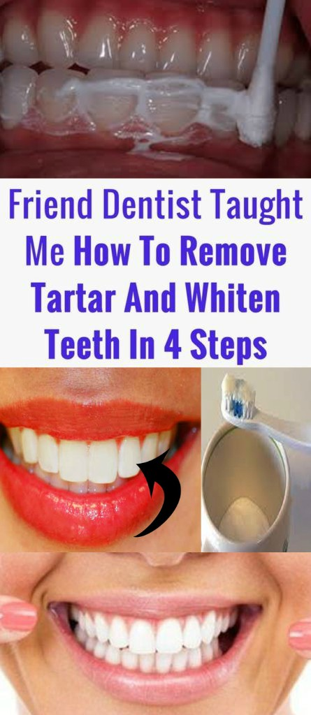 14 1 A Friend Dentist Taught Me How To Remove Tartar And Whiten Teeth In 4 Steps