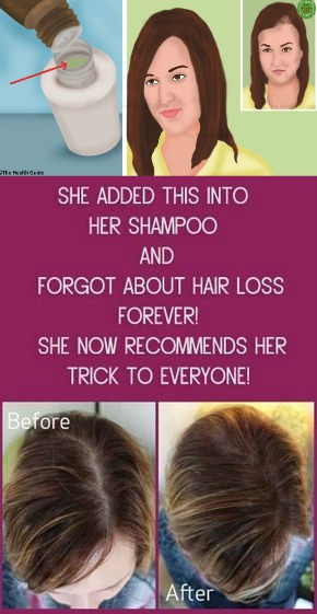 13 12 She Added This into Her SHAMPOO and Forgot About Hair Loss FOREVER!