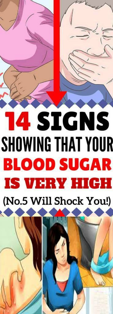 17 3 14 Signs Showing That Your Blood Sugar Is Very High