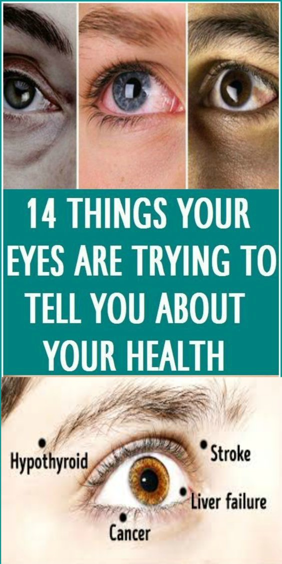 19 14 Things Your Eyes Are Trying To Tell You About Your Health