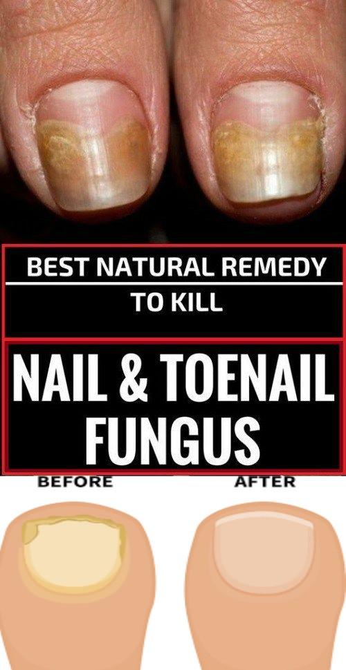 BEST NATURAL REMEDY TO KILL NAIL AND TOENAIL FUNGUS