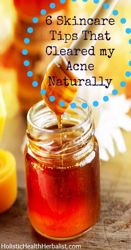 Skincare Tips That Cleared My Ace Naturally