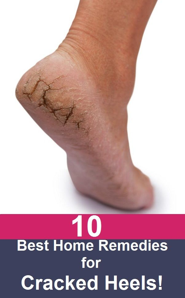10 Simple Home Remedies For Cracked Heels 10 Simple Home Remedies For Cracked Heels