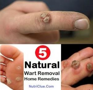 5 Natural Wart Removal Home Remedies 300x293 5 Natural Wart Removal Home Remedies