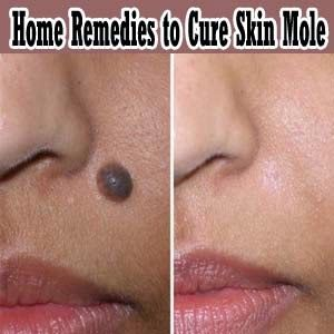 Home Remedies to Cure Moles Home Remedies to Cure Moles