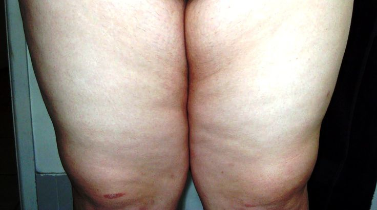 How you can Get Rid Of Inner Thigh Fat How you can Get Rid Of Inner Thigh Fat