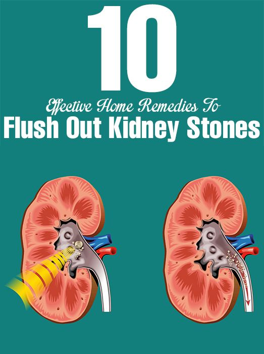 Top 10 Effective Home Remedies To Flush Out Kidney Stones Top 10 Effective Home Remedies To Flush Out Kidney Stones