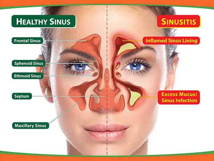 DIY Home remedies for the treatment of Sinus infection. DIY Home remedies for the treatment of Sinus infection
