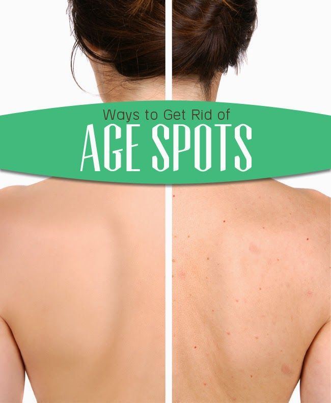 Ways to Get Rid of Age Spots Ways to Get Rid of Age Spots