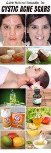 DIY Remedies for Cystic Acne 100x300 DIY Remedies for Cystic Acne