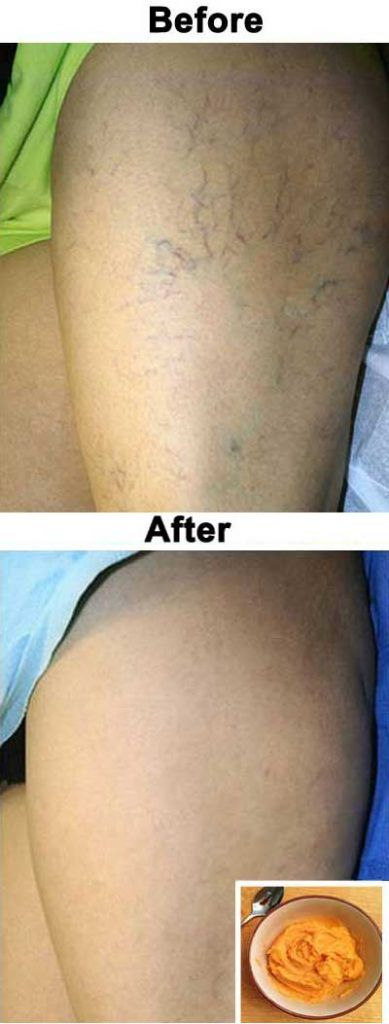 The Most Effective Natural Treatment For Varicose Veins The Most Effective Natural Treatment For Varicose Veins