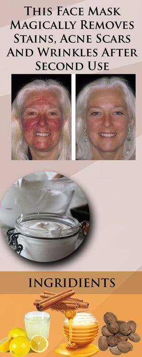 This Face Mask Magically Removes Stains Acne Scars And Wrinkles After Second Use This Face Mask Magically Removes Stains, Acne Scars And Wrinkles After Second Use