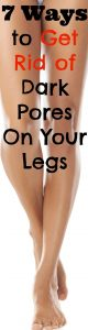 7 Ways to Get Rid of Dark Pores On Your Legs 80x300 7 Ways to Get Rid of Dark Pores On Your Legs