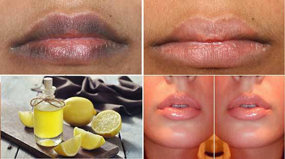 MAKE YOUR LIPS SOFT AND PINK IN JUST 10 MINUTES WITH NATURAL REMEDIES