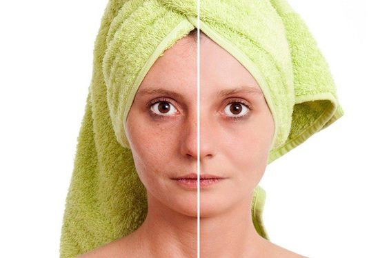 How To Shrink Pores How To Shrink Pores