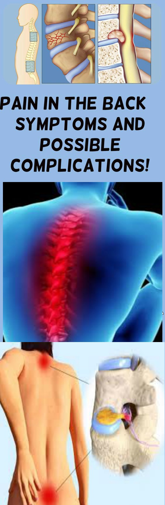 Pain In The Back – SYMPTOMS AND POSSIBLE COMPLICATIONS!