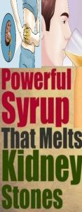 POWERFULL SYRUP THAT MELT KIDNEY STONS 117x300 POWERFULL SYRUP THAT MELT KIDNEY STONS