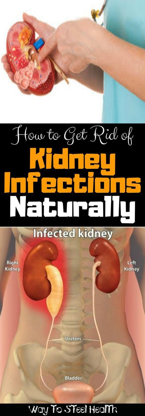 11 how to get rid of kidney infections naturally