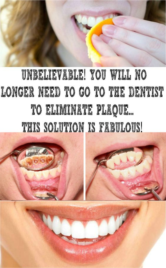 14 2 UNBELIEVABLE! YOU WILL NO LONGER NEED TO GO TO THE DENTIST TO ELIMINATE PLAQUE… THIS SOLUTION IS FABULOUS!
