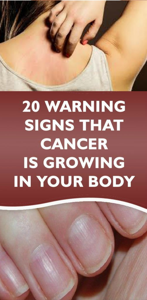 16 5 20 Warning Signs that Cancer is Growing in Your Body