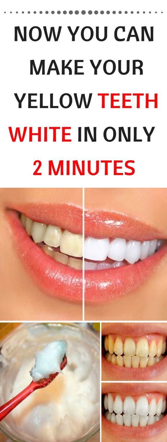 16 8 NOW YOU CAN MAKE YOUR YELLOW TEETH WHITE IN ONLY 2 MINUTES!