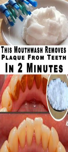 18 1 This Mouthwash Removes Plaque From Teeth In 2 Minutes