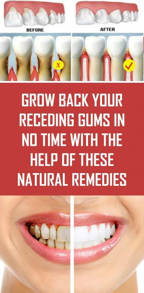 18 Grow Back Your Receding Gums In No Time With The Help Of These Natural Remedies