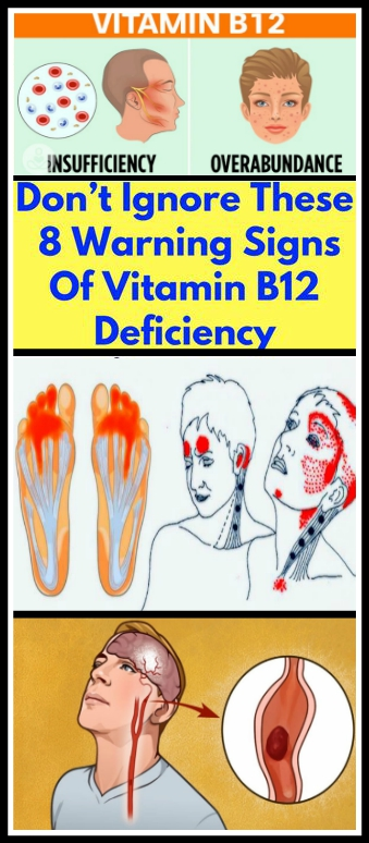 Don't Ignore These 8 Warning Signs Of Vitamin B12 Deficiency Don't Ignore These 8 Warning Signs Of Vitamin B12 Deficiency