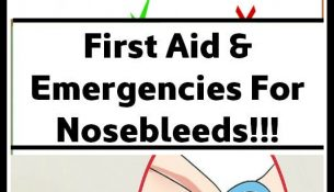 First Aid & Emergencies For Nosebleeds!!!