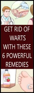 GET RID OF WARTS WITH THESE 6 POWERFUL REMEDIES Copy 109x300 GET RID OF WARTS WITH THESE 6 POWERFUL REMEDIES   Copy