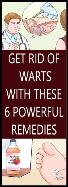 GET RID OF WARTS WITH THESE 6 POWERFUL REMEDIES Copy GET RID OF WARTS WITH THESE 6 POWERFUL REMEDIES