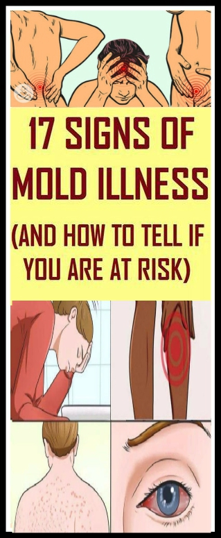 Here Are 17 Signs Of Mold Illness How To Tell If You're At Risk Here Are 17 Signs Of Mold Illness & How To Tell If You're At Risk