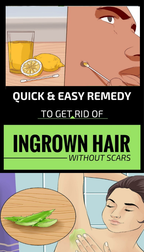 Quick Easy Remedy To get Rid Of Ingrown Hair Without Scars Quick & Easy Remedy To get Rid Of Ingrown Hair Without Scars!!!