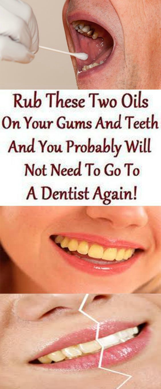 asf Rub These Two Oils On Your Gums And Teeth And You Probably Will Not Need To Go To Dentist Again